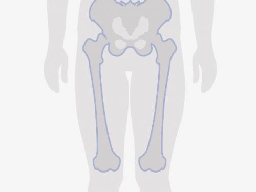 knochenkrebs diagnose