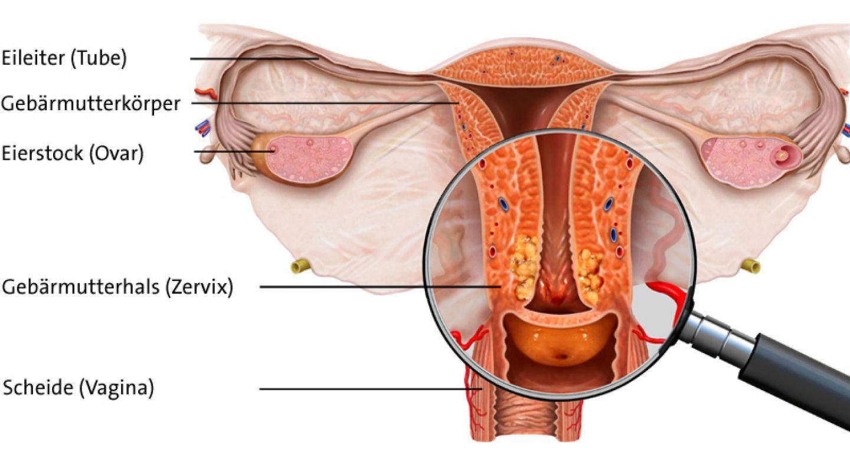 hpv infektion gebarmutterhals)
