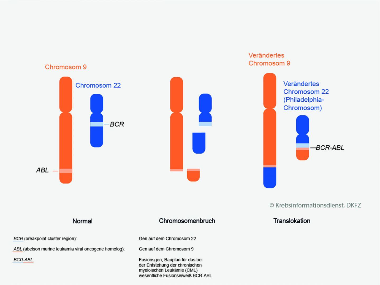 Diät bei chronischer myeloischer Leukämie